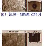 あなたの角膜内皮細胞、1ミリ平米あたり1500個以上ありますか?